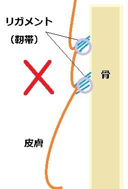 たるみとリガメントHA.jpg