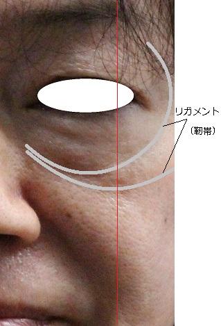 たるみモニターリガメント.jpg