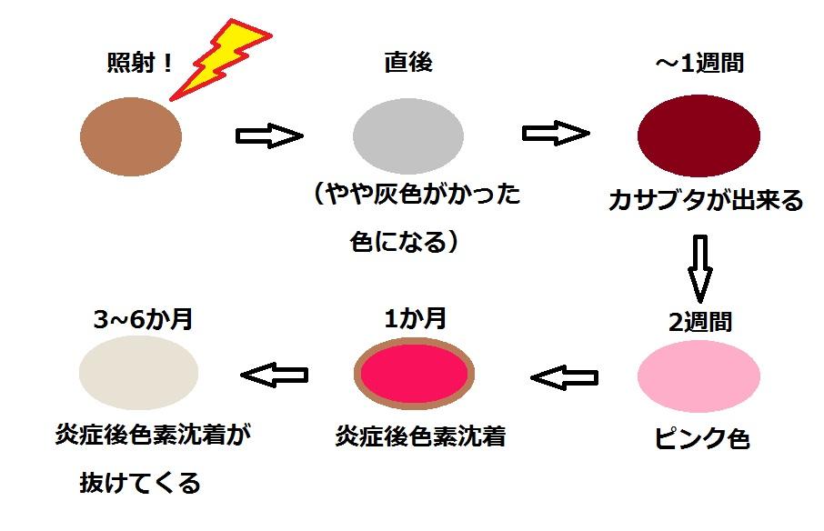 シミ治療経過.jpg