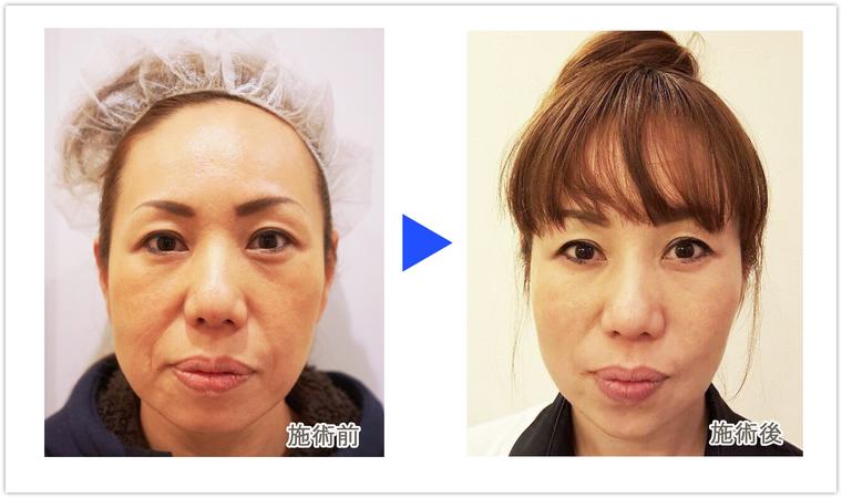 スレッド(メイプル)リフトでたるみ治療1 美容外科皮膚科ピュアメディカルクリニック.jpg