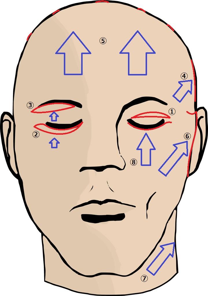 タルミ取り手術の種類.jpg