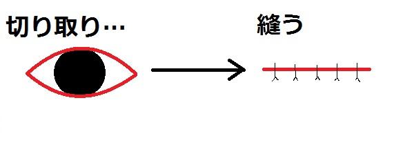 ホクロ取り切除縫合.jpg