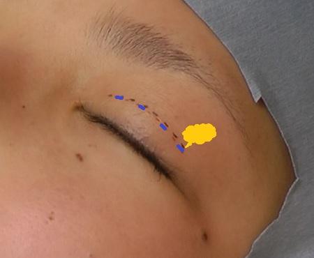 マイクロ切開上瞼脱脂.jpg