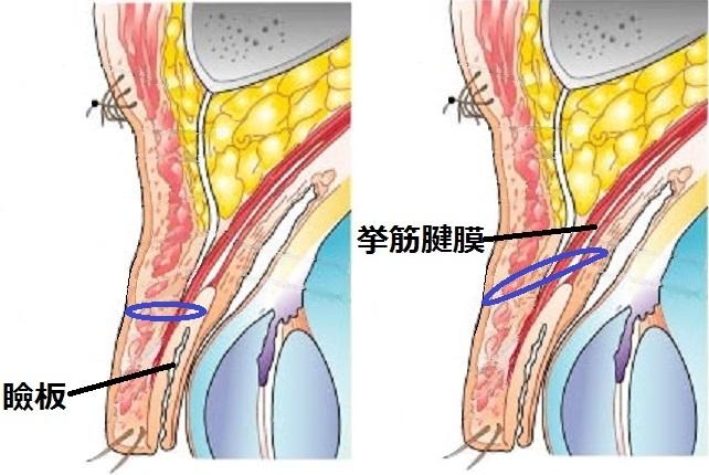 一重まぶた構造瞼板挙筋法.jpg