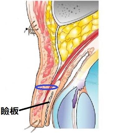 一重まぶた構造瞼板法.jpg