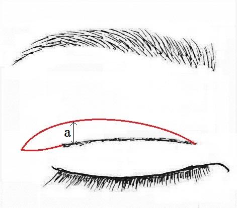 上瞼たるみ取り切除量.jpg