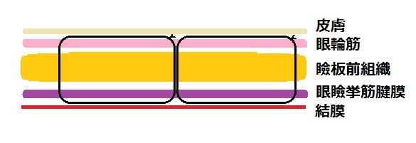 埋没法例2.jpg