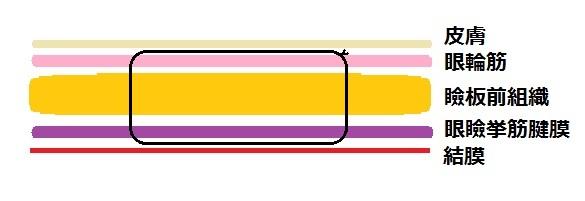埋没法例3.jpg