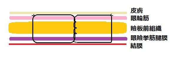 埋没法例5.jpg