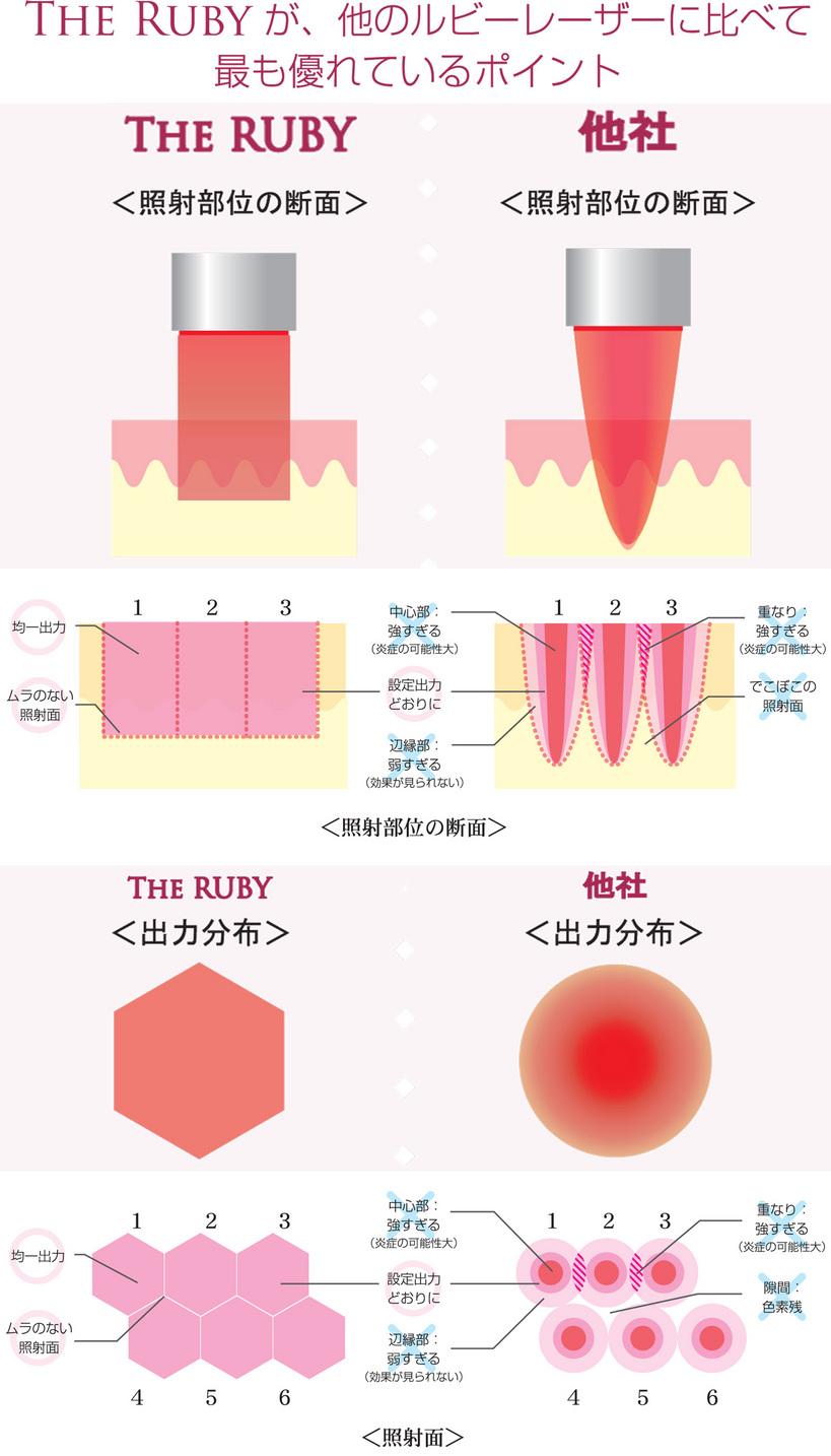 奈良のシミ取り治療 は美容外科皮膚科ピュアメディカルクリニック