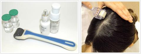 奈良の女性の発毛増毛ハーグ療法はピュアメディカルクリニック 美容外科皮膚科