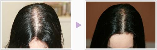 奈良の女性の発毛増毛治療はピュアメディカルクリニック 美容外科皮膚科