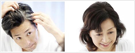 奈良の発毛増毛ハーグ療法はピュアメディカルクリニック 美容外科皮膚科男性女性共1
