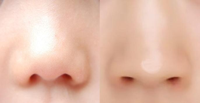 小鼻比較.jpg