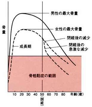 年齢と骨量.jpg