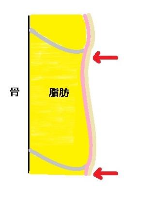 皮膚骨靭帯関係図タルミあり2.jpg