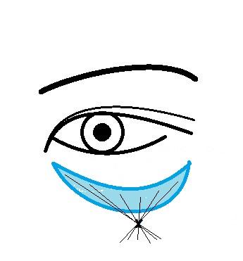 目の下凹み注入.jpg