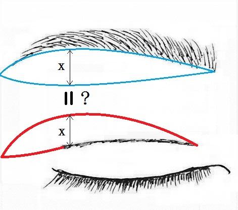 眉下切開と上瞼タルミ取りデザイン.jpg