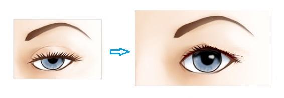 眼瞼下垂前後たるみあり.jpg