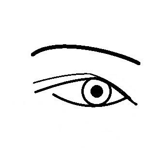眼瞼下垂失敗.jpg
