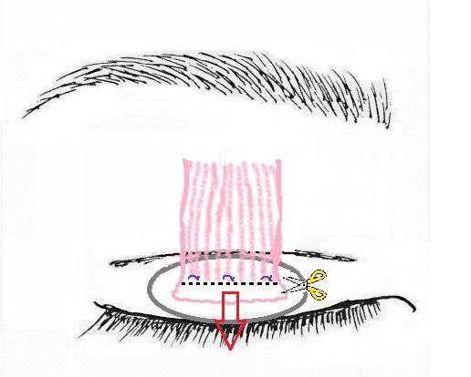 眼瞼挙筋腱膜前転術2.jpg