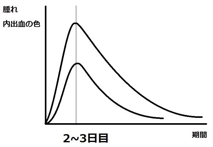 腫れと期間の関係.jpg