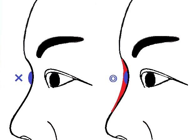 隆鼻術考え方.jpg