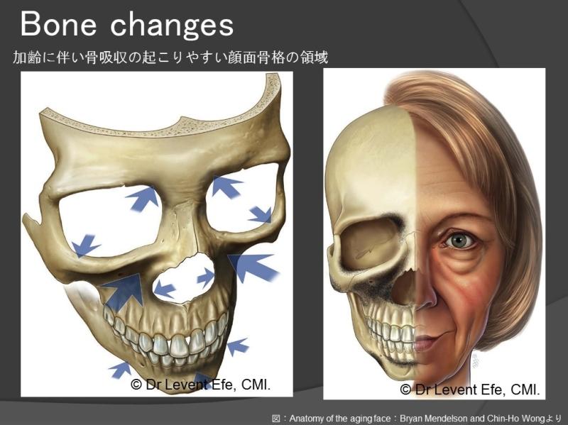 顔面の骨吸収.jpg