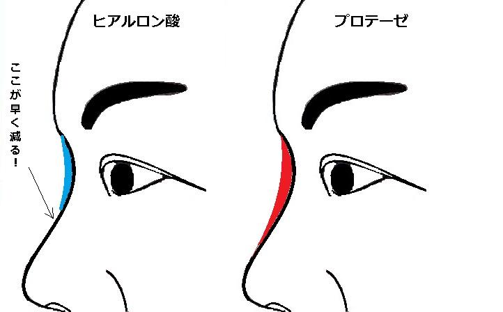 鼻ヒアル対プロテーゼ.jpg