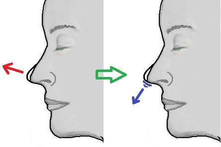 鼻尖への軟骨移植.jpg