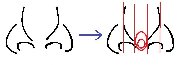 鼻尖軟骨移植模式図2.jpg