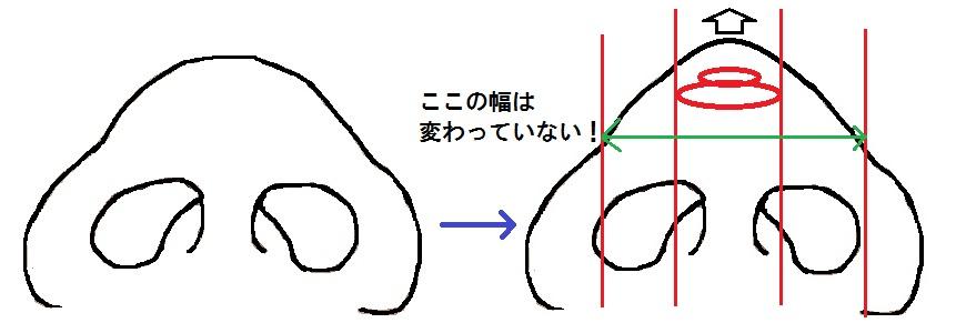 鼻尖軟骨移植模式図3.jpg