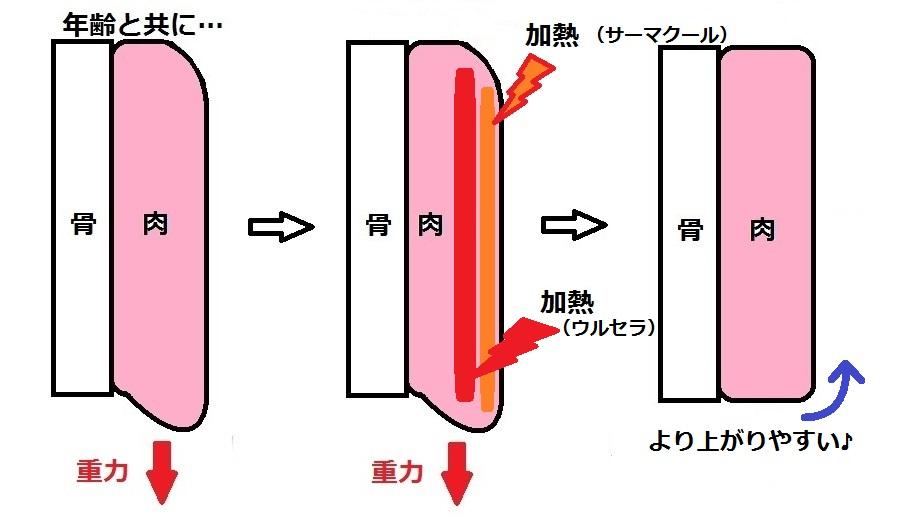たるみ模式図サーマウルセラ.jpg