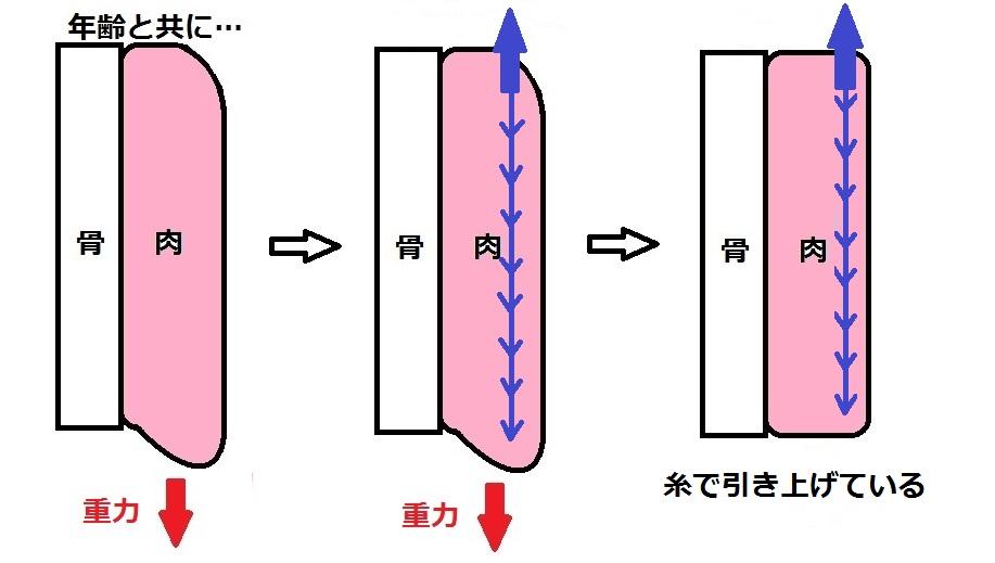 たるみ模式図糸引き上げ.jpg