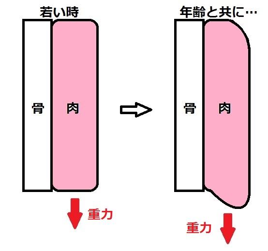 たるみ模式図.jpg