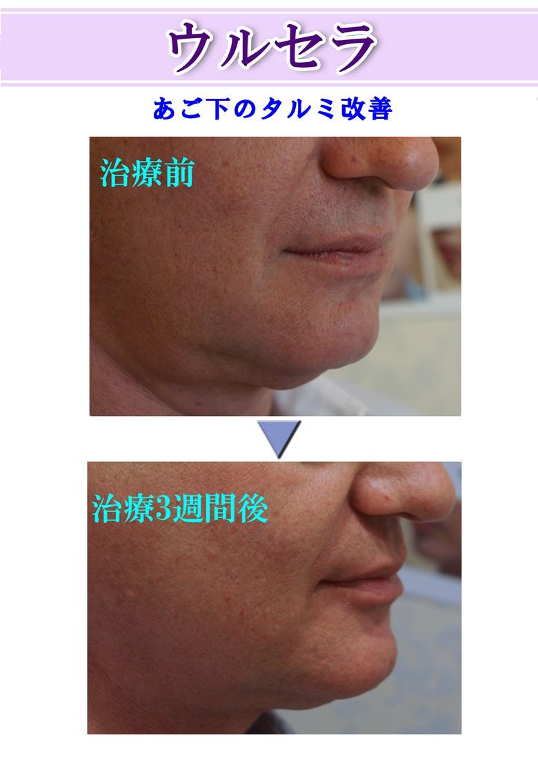 あご下のたるみ改善!ウルセラ施術症例