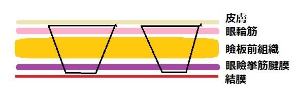 埋没法例4.jpg