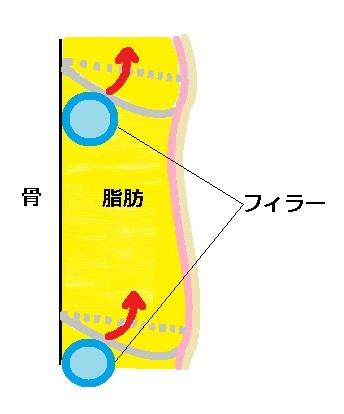 皮膚骨靭帯関係図タルミあり3.jpg