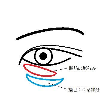 眼の下図.jpg
