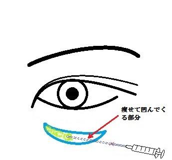眼の下注入.jpg
