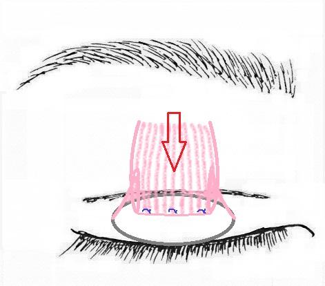 眼瞼挙筋腱膜前転術.jpg