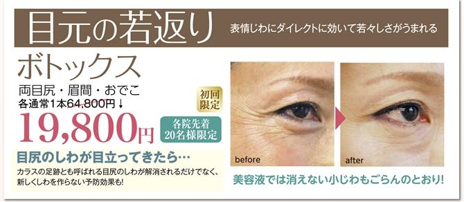 201512-botox-670.jpg