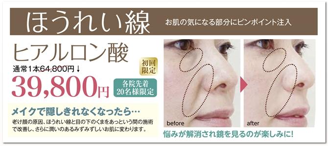 しわたるみにヒアルロン酸 美容外科ピュアメディカルクリニック奈良