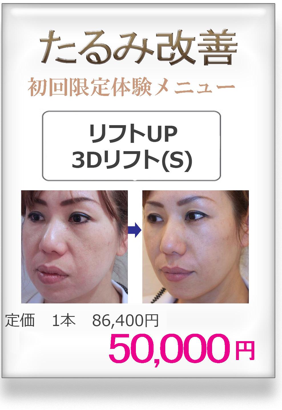 たるみ改善治療に3Dリフト/美容外科ピュアメディカルクリニック/奈良・大阪・京都