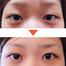 「2点留め+まぶた脱脂」症例写真です/美容外科・皮膚科ピュアメディカルクリニック 奈良・関西
