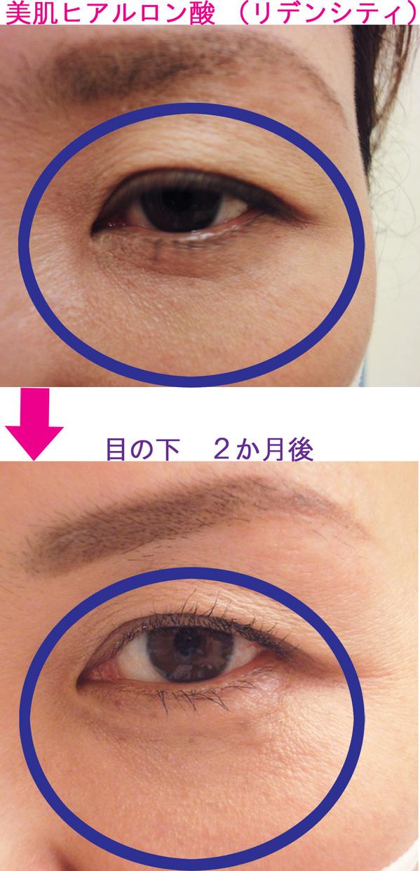 eye-3.jpg