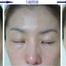 アトピー性皮膚炎治療モニター画像17(顔・鼻の痒み・炎症赤み改善)![ダチョウ卵黄エキス]レイドラテ・ラ・ポー(旧アトプロテクト)