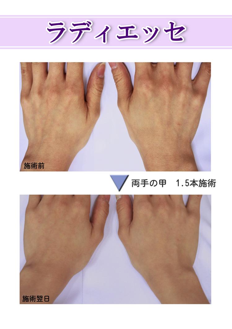ラ(レ)ディエッセで筋張った手の甲をふっくらとのサムネール画像