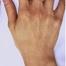 ラ(レ)ディエッセで筋張った手の甲をふっくら症例/美容整形外科「ピュアメディカルクリニック」/奈良・大阪・京都・三重・和歌山