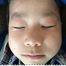 アトピー性皮膚炎治療モニター画像19(6才子供、お顔・胸・背中かゆみ改善)!レイドラテ・ラ・ポー(旧アトプロテクト)[ダチョウ卵黄ジェル]